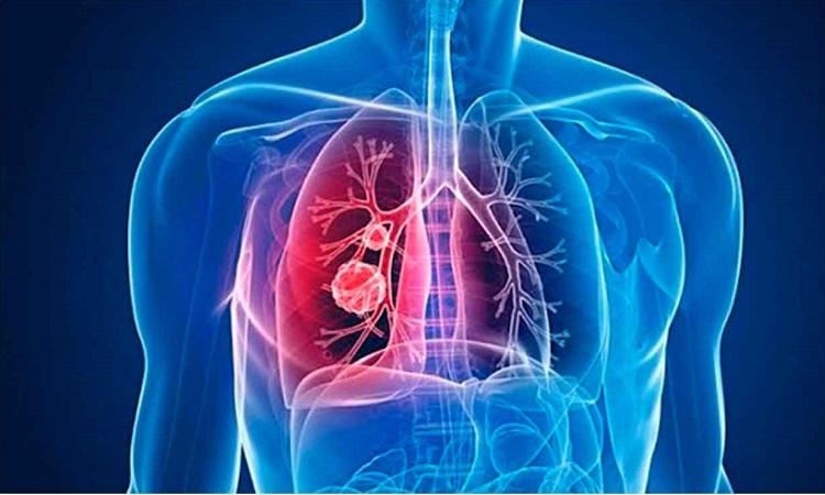 Hipertensión-Pulmonar.jpg